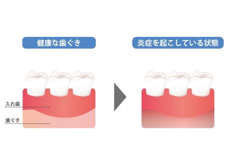 歯ぐきが炎症を起こしてしまっている