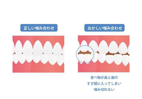 入れ歯の噛み合わせが悪い