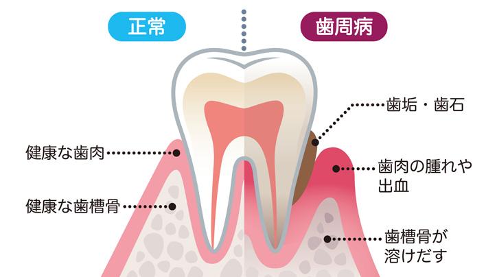 入れ歯を清潔に保つお手入れ完璧ガイド