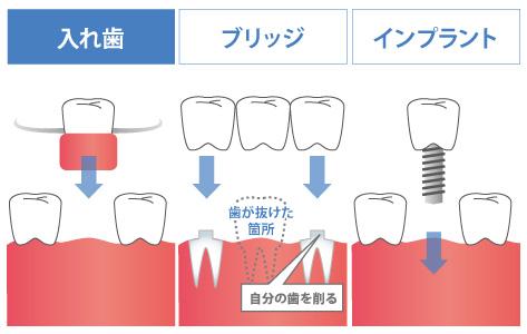 入れ歯の治療期間と耐久年数
