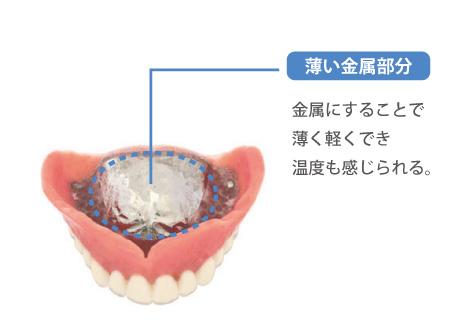 入れ歯の素材選びが適していない
