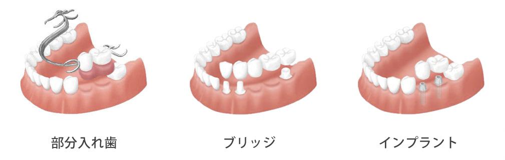 歯が3本以上抜けた方の場合