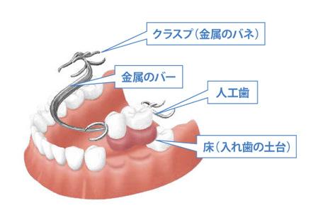 部分入れ歯の構造