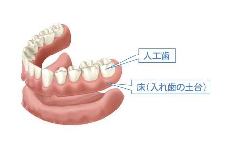 総入れ歯の構造