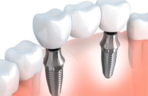 入れ歯・インプラント・ブリッジの治療比較