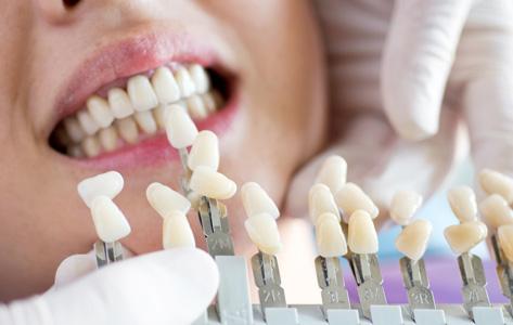 人工の歯を並べる