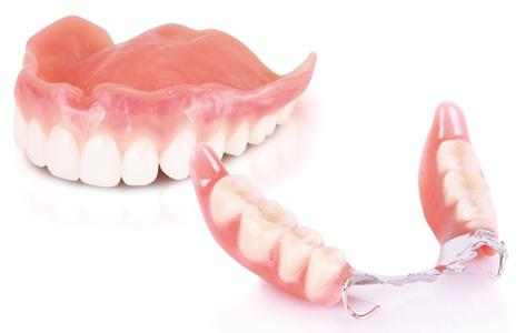 入れ歯の完成とリハビリテーション