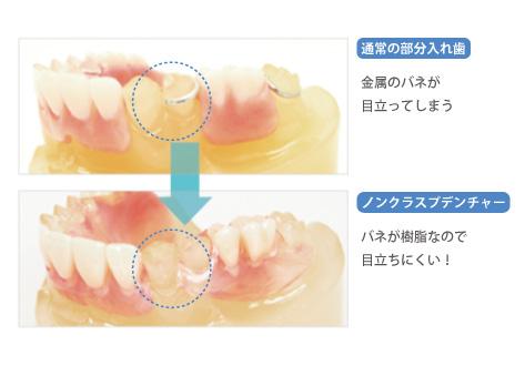 入れ歯の種類が患者さんのご希望に合っていない