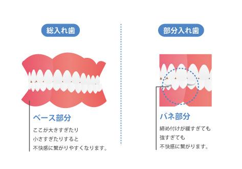 お口の形に対して入れ歯の形が適切でない