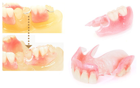 金属のバネがなく、入れ歯が目立たず良く噛める入れ歯