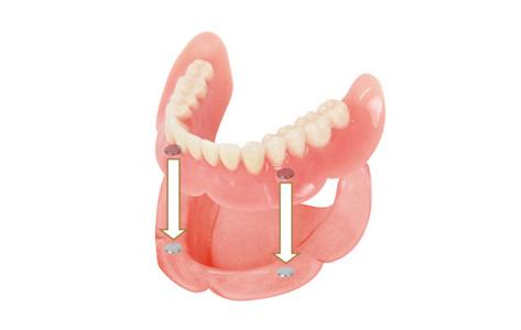 マグネットの入れ歯(部分入れ歯・総入れ歯適用)