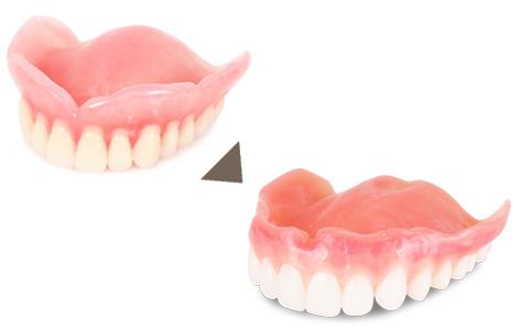 歯茎をより本物に近い色付けへ