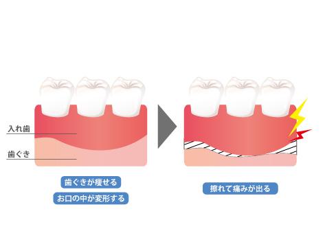 入れ歯がお口と密着していない