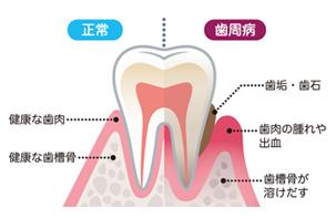 通常と歯周病の説明