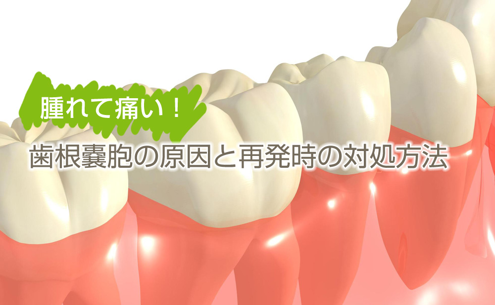 腫れて痛い!歯根嚢胞の原因と再発時の対処方法