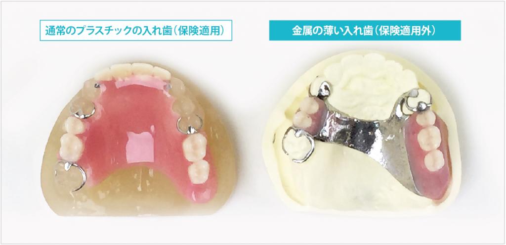 プラスチックと金属の入れ歯比較イメージ