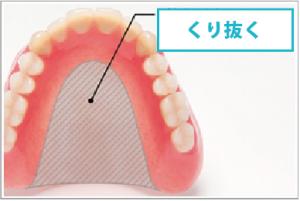 馬てい形の入れ歯