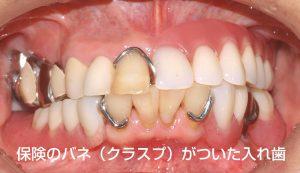 保険のクラスプがついた部分入れ歯