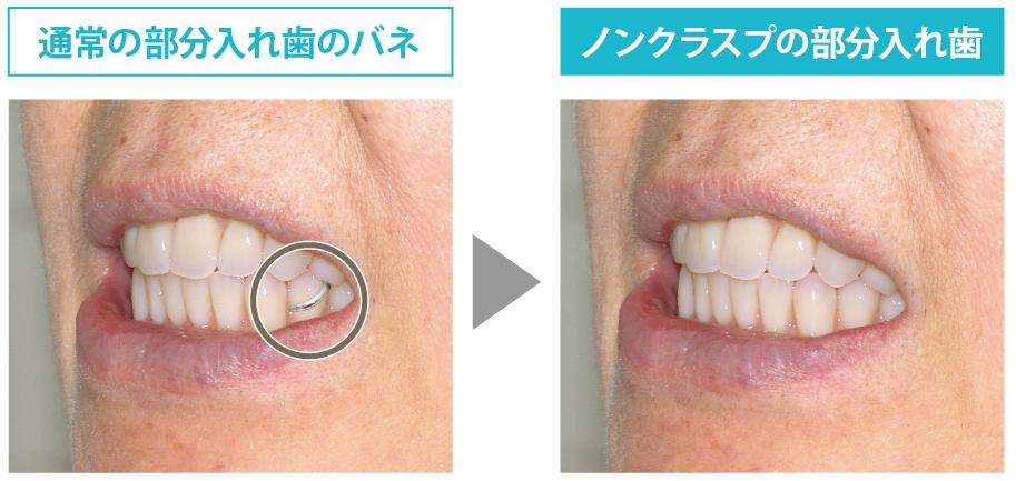 通常の入れ歯とノンクラスプデンチャーの違い width=