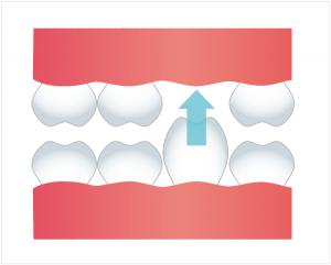 歯の挺出の図