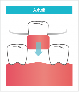 入れ歯の説明