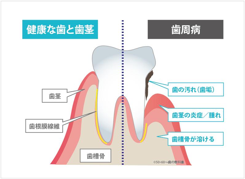 歯周病の説明図