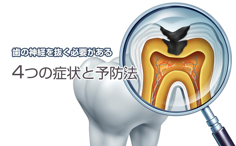 歯の神経を抜く必要がある4つの症状と予防法