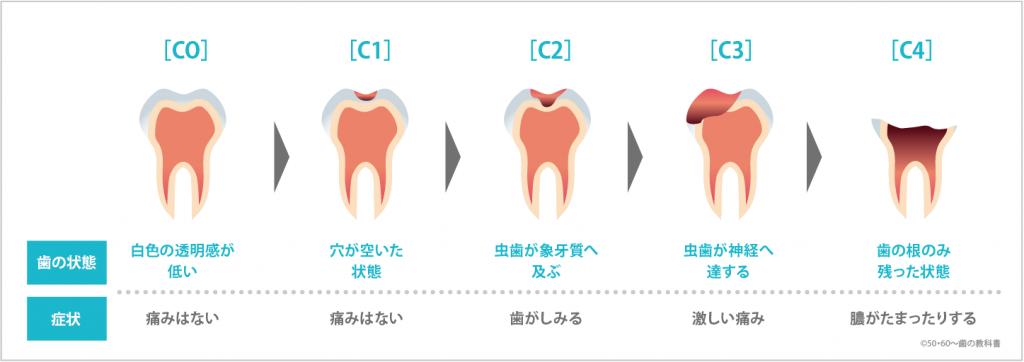虫歯の進行イメージ