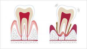 通常の歯と歯周病
