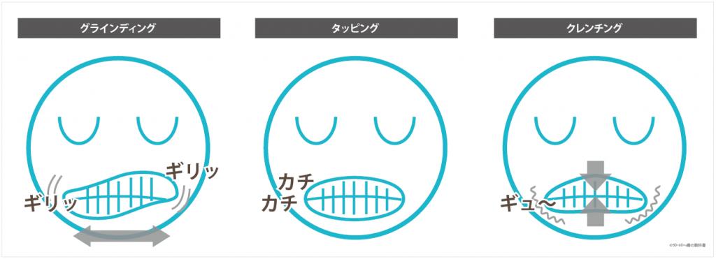 歯ぎしりの種類