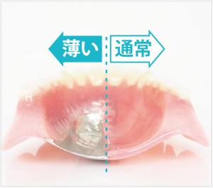 入れ歯の厚みイメージ図
