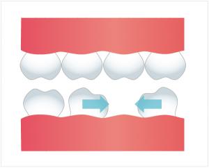 歯の傾斜の図