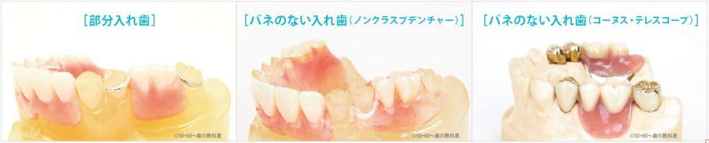 の 入れ歯 奥歯