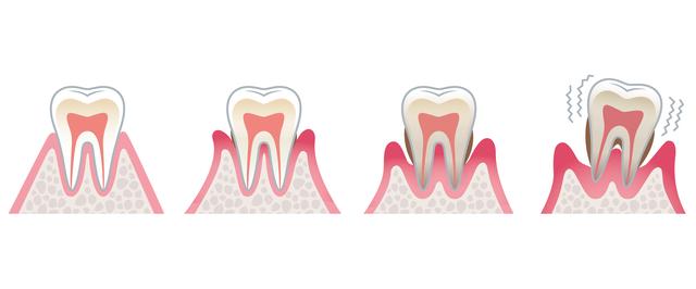 歯茎がさがるイメージ
