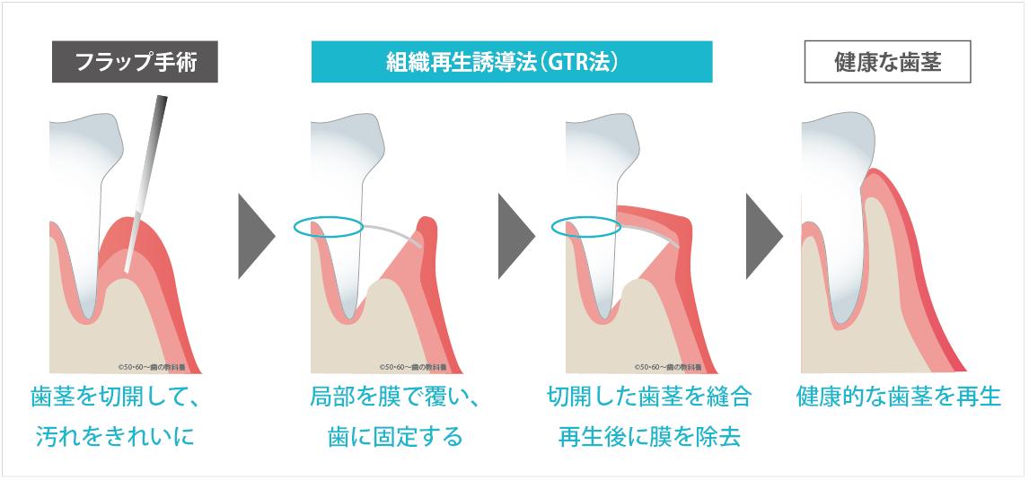 GTR法の説明