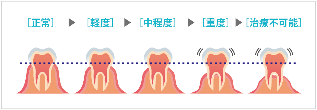 漏 歯槽 治療 膿 歯槽膿 漏治療薬