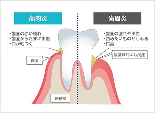 歯肉炎と歯周炎のイメージ図