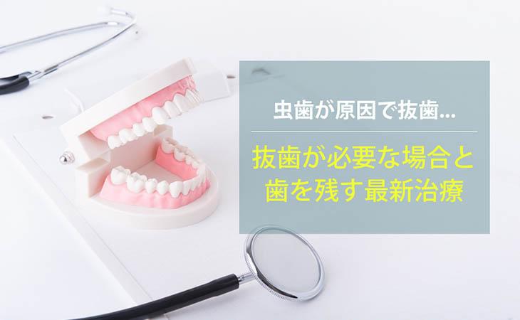 虫歯が原因で抜歯…抜歯が必要な場合と歯を残す最新治療