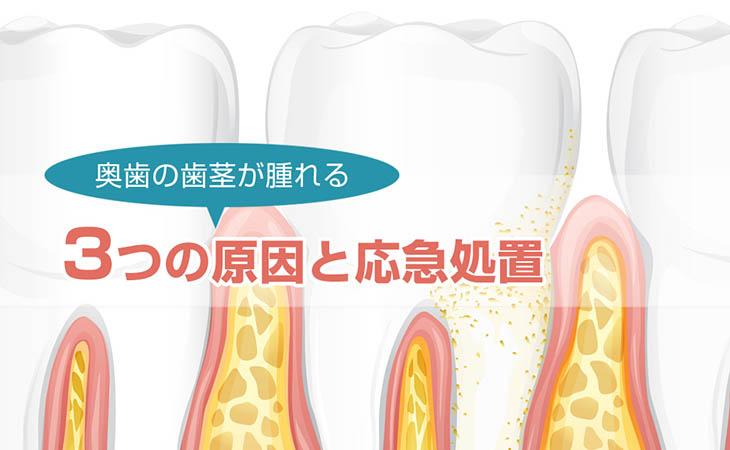 奥歯の歯ぐきが腫れる3つの原因と応急処置