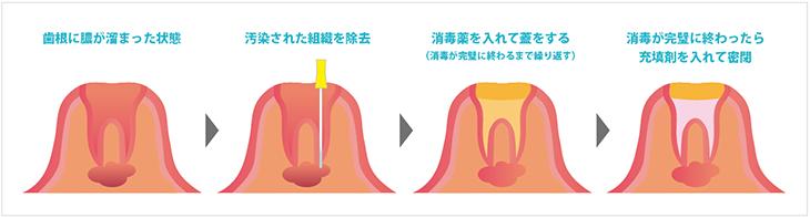根尖性歯周炎の治療