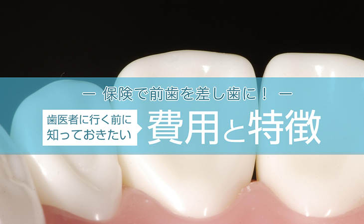 保険で前歯を差し歯に!歯医者に行く前に知っておきたい費用と特徴