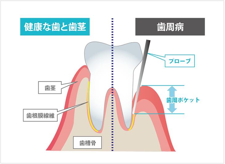 歯周ポケットの図