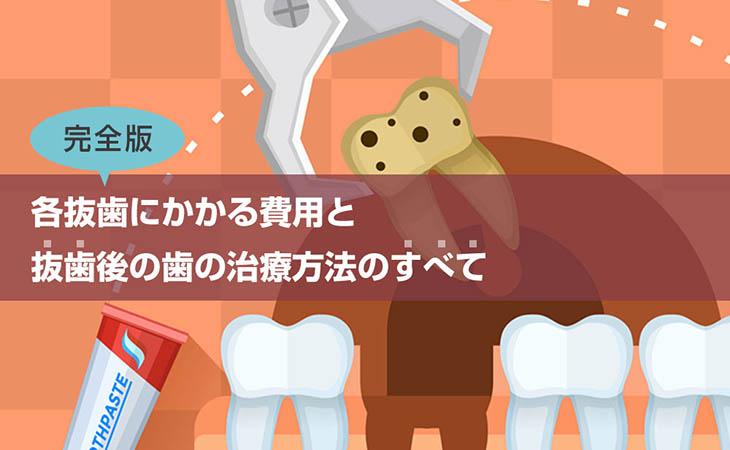 完全版!各抜歯にかかる費用と抜歯後の歯の治療方法のすべて