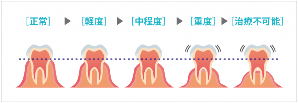 歯周病の進行イメージ